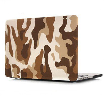Printing Luxury Fashion Hard PC Case For Macbook