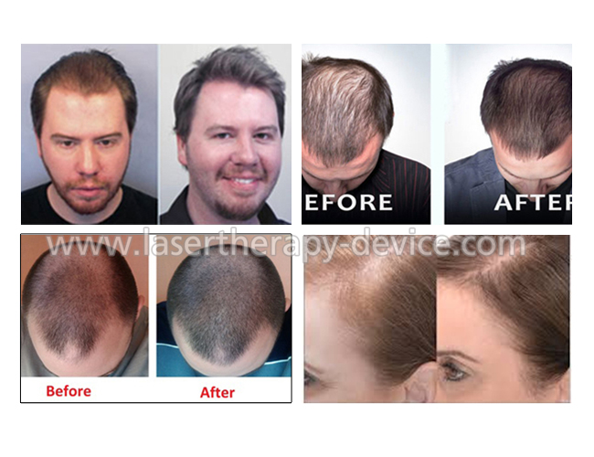 FDA cleared laser helmet hair Growth get beautiful and healthy hair