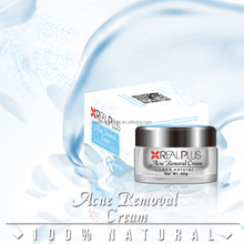 Hot Sale Herbal Formula Anti Pimples Beauty Care Rose Cream For Acne