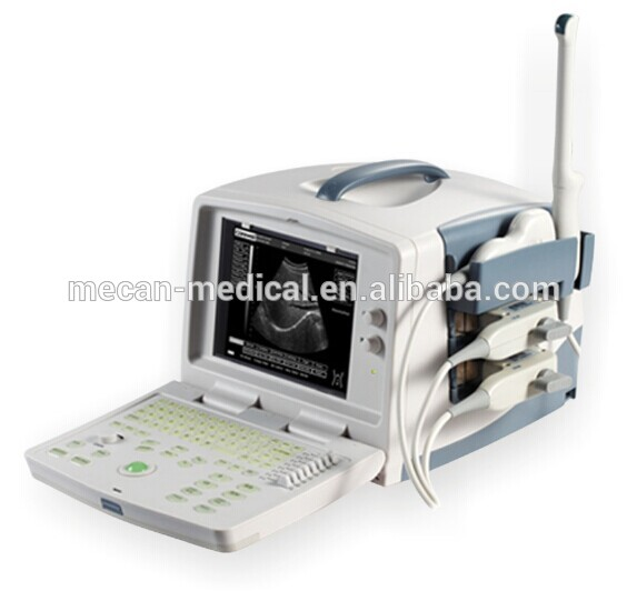 MCU-Ecare-50c 15in LED 4D PC Portable Ultrasound Scanner
