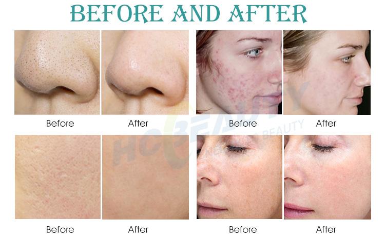 esthétique machine led traitement de l'acné