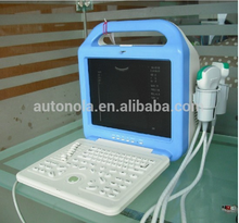 Hospital Equipment&Newest Product&Digital Laptop Ultrasound Scanner ATNL/51353A LCD