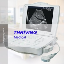 THR-LT002 Full Digital Laptop Ultrasound Scanner