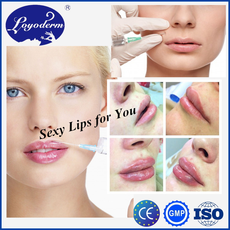 Injectable Dermal Filler/hyaluronic Acid Gel For 5ml,10ml Syringe With Most Cost-effective Price
