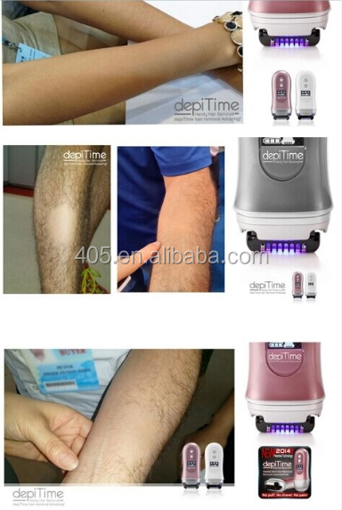 Long-term result Heated Line depiTime no pain body hair removal