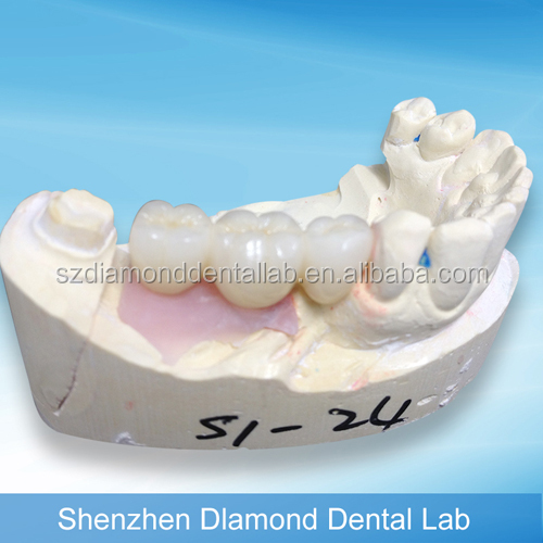 Dental Zirconia Implant Crowns/bridge Prosthetic supplies