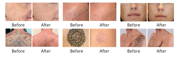Beautemed Picosecond Laser Tatoo Removal Pigment Removal Pico Laser Picosecond Nd Yag Laser