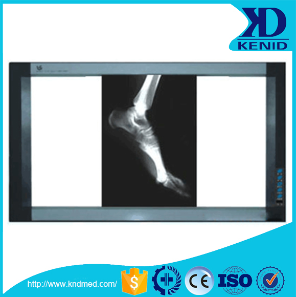 Factory provide cheap price dental Oral Radiography led x-ray film viewer