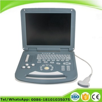 CE approved 15 inch LCD Laptop color doppler ultrasonography USG monitor for abdomen gynecology obstetrics cardiology