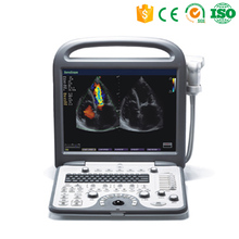 MY-A040A High-Performance Mayamed Echocardiography Machine 2D Echo portable color doppler ultrasound
