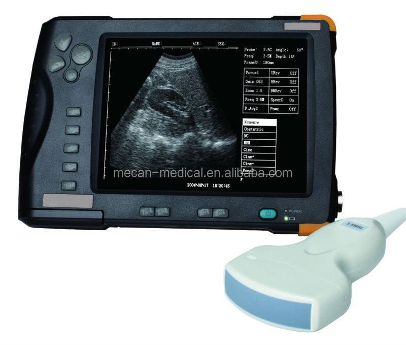 MCU-SS-7 15in LCD Laptop Portable B Ultrasound Scanner