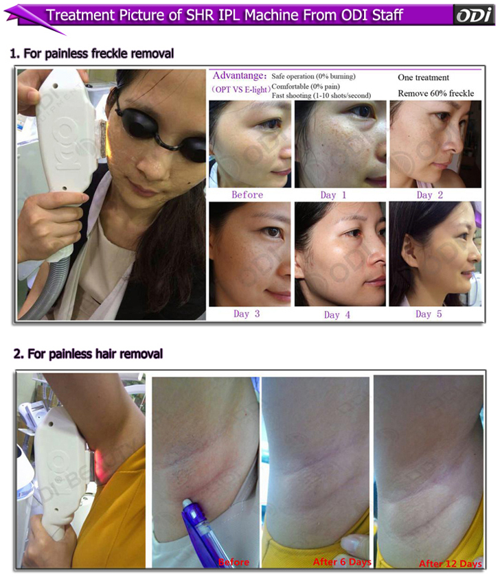 Yes IPL+ RF and Pigment Removal,Hair Removal Feature ssr shr ipl