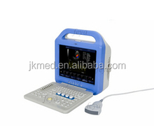 China Lowest Price color doppler pregnancy scanner ultrasound