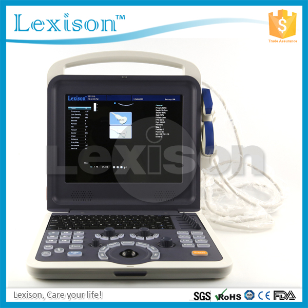Medical Ultrasound Very Clear Imaging 3D 4D Portable Ultrasound Machine