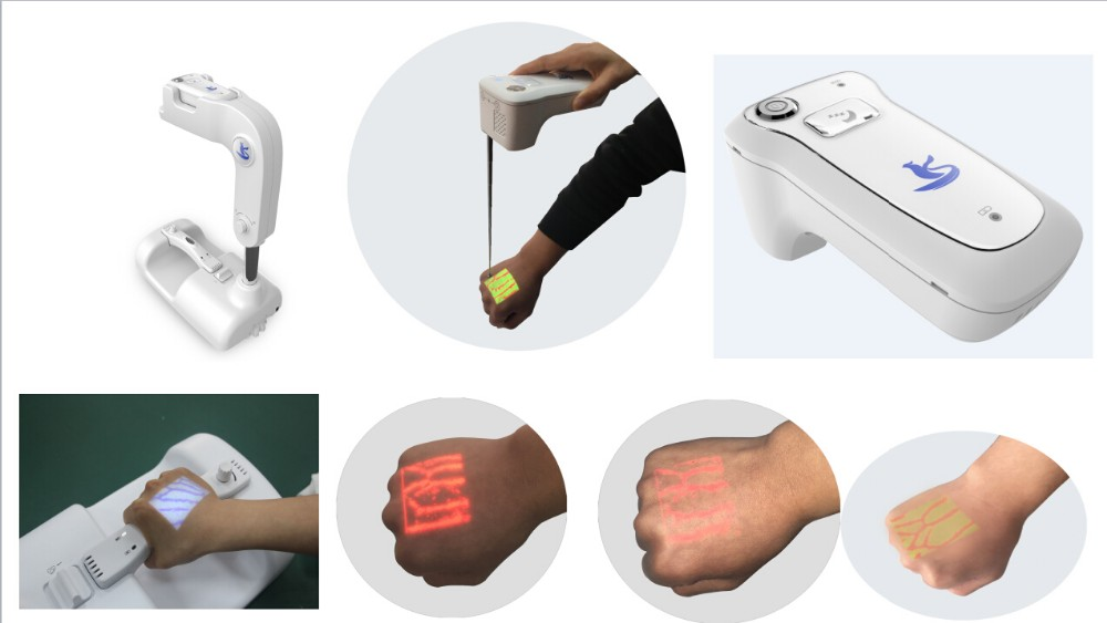 Hot selling Vein Illumination System with high quality