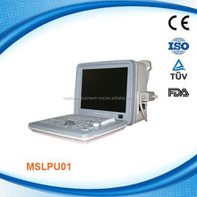 MSLPU01W LCD USB Portable Ultrasound Scanner Desktop human ultrasound body scanner