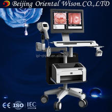Optical Electronic Digital Colposcopy & Video Microscope Colposcope & Optoelectronic Integrated colposcope software