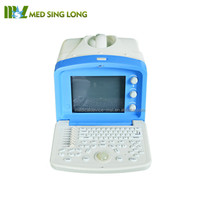 Cheap ultrasound machine price/The best price of portable ultrasound macnine MSLPU04