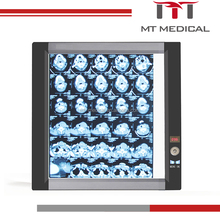 dental medical LED x-ray film viewer single