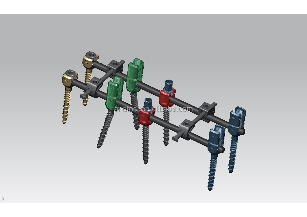 fixed angle posterior screw interlocking screw