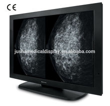 2146(JUSHA-M101)10M Monochrme Medical Display,lcd monitor spare parts,medical x-ray lead screen