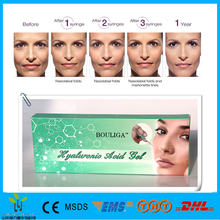 Women sex liquid Dermal filler hyaluronic acid gel injection
