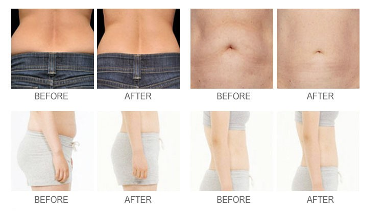 Tighten stomach skin after weight loss photo 3
