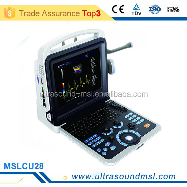 MSLCU28Z Low price portable/laptop color doppler 4d ultrasound