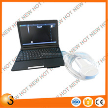 Portable Ultrasonic Diagnostic Devices Type medical mini laptop ultrasound instruments