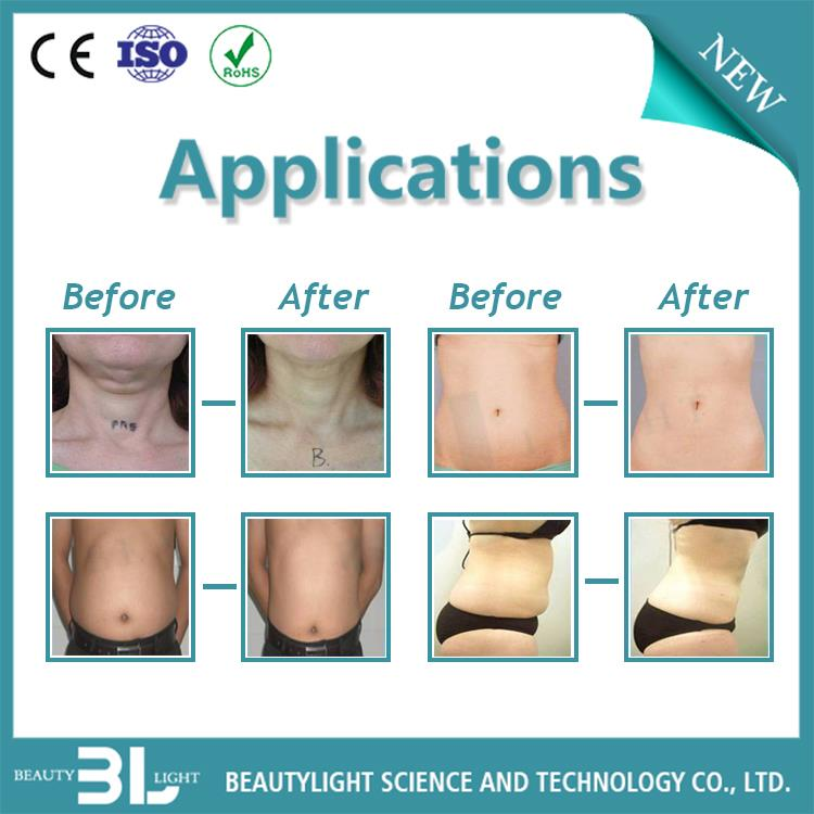 Ultrasonic galvanic body shaping/slimming&fat/cellulite reduction medical device
