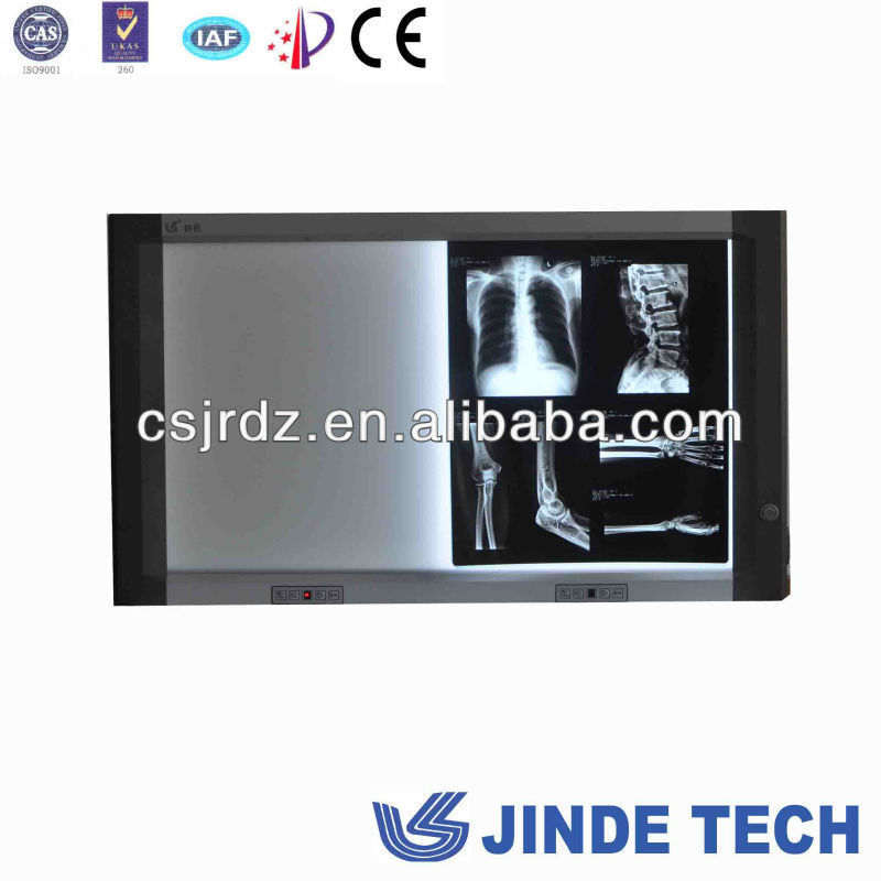 high brightness good x ray LED Negatoscope,led negatoscope high brightness