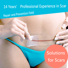 Clear Medical Silicone Scar Sheet Dressings for C Section and Pregnancy Scars