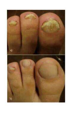 nail fungus laser treatment, improve&revise nail fungus problem.