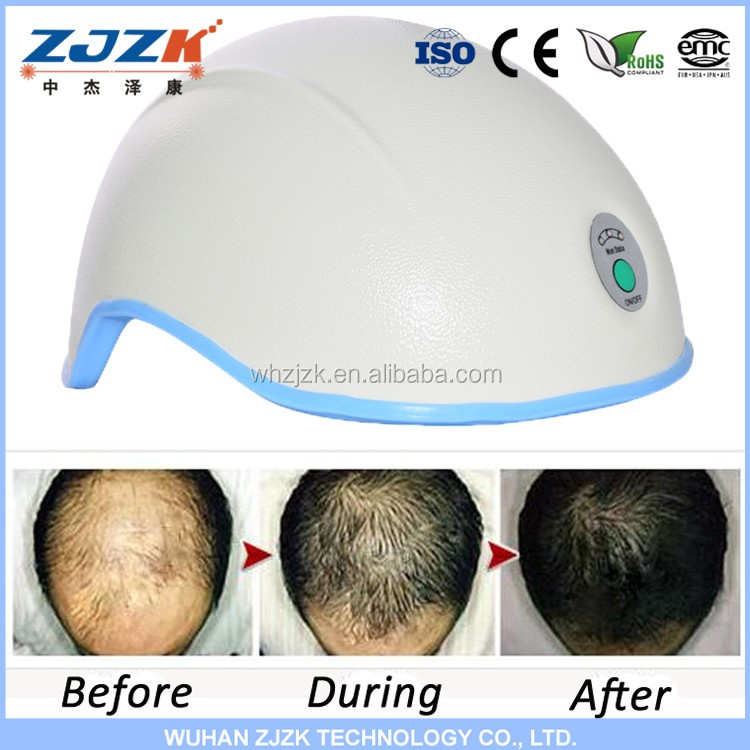 hair loss led light hair growth therapy laser treatment to. Black Bedroom Furniture Sets. Home Design Ideas