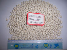 2014 different varieties of white kidney beans from China with cheap price
