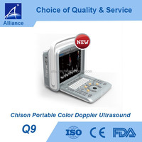 Chison Q9 Portable Color Doppler Ultrasound
