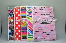 for Ipad Mini Case, Snap-on PC Hard Case with IMD (IML)