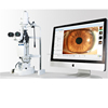 China ophthalmic equipment motorized focusing digital slit lamp with LED Lamp
