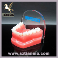 Acrylic Resin Teeth Model Dental Souvenir Gift Factory