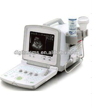 2017 hot selling Ultrasound Diagnostic Scanner CMS 600B handheld ultrasound