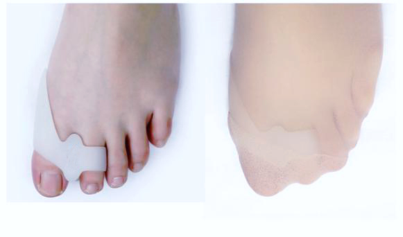soft mo gel toe stretcher & separator bunion toe separator
