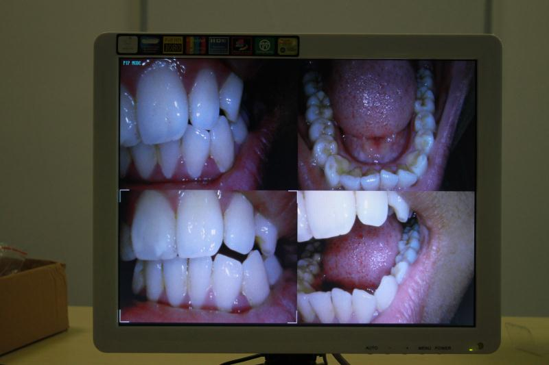 Promotion Dental lcd monitor intraoral camera with holder connector for dental
