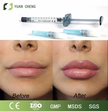 Acido hialuronico for lips filler with high recommended