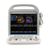 Doppler ultrasound equipment type laptop prices in China