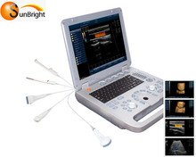 color doppler 3d ultrasound ultrasonic for cardiology and vascular