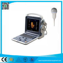 Hot Sale high quality Medical 3D 4D Portable Ultrasound Machine Price for Pregnancy