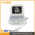 CE&ISO digital portable ultrasound scanner with 3.5Mhz convex probe ultrasound machine medical equipment ultrasonic diagnostic