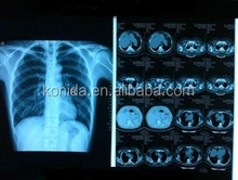 x ray blue film medical dry film types medical supplies x ray film