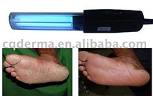 UV Lights Phototherapy- Psoriasis, Vitiligo, Eczema, Atopic Dermatitis, Skin Disorders Treatment