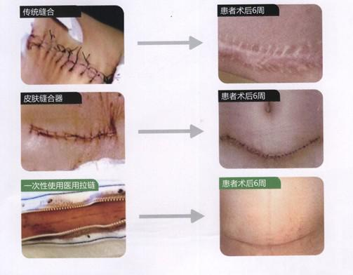 New products/Scar repair /Medical Zipper Tape for Singleuse